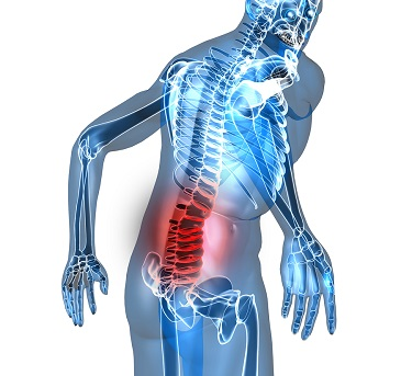 Back Injuries Should Not be Taken Lightly - Contact a Miami Personal Injury Lawyer