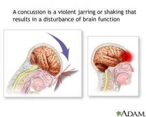 Concussion - Miami Personal Injury Lawyer