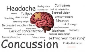 Miami Personal Injury Lawyer - Concussion