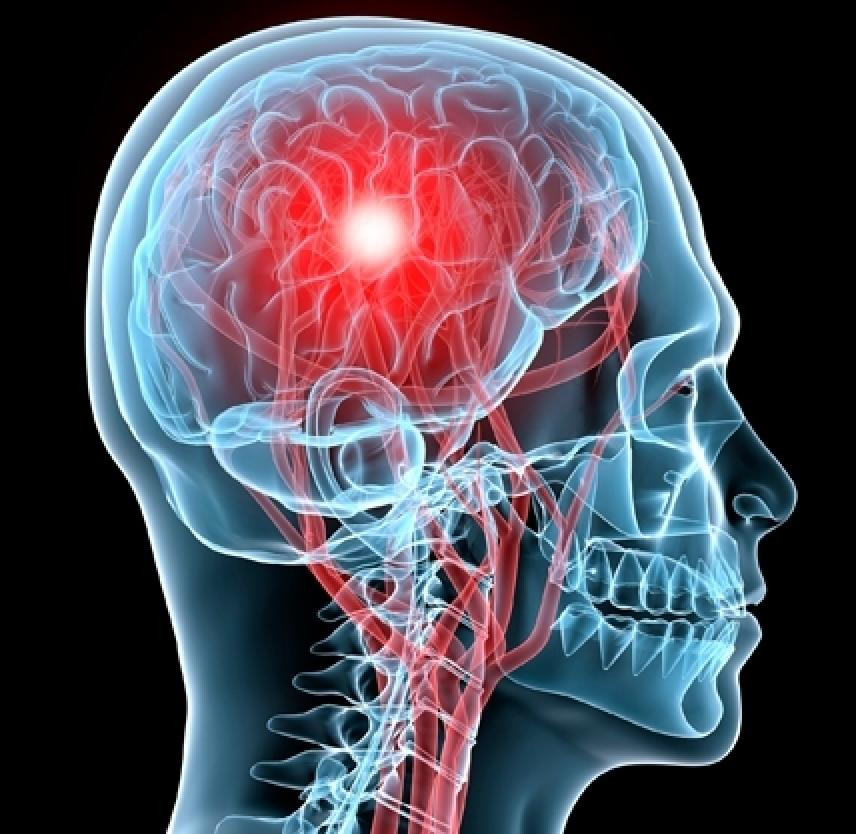 Miami Personal Injury Lawyer Explains What to do After a Concussion