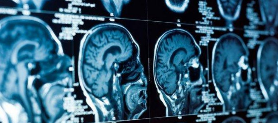 Miami Brain Injury Attorney - Personal Injury Lawyer In Miami FL