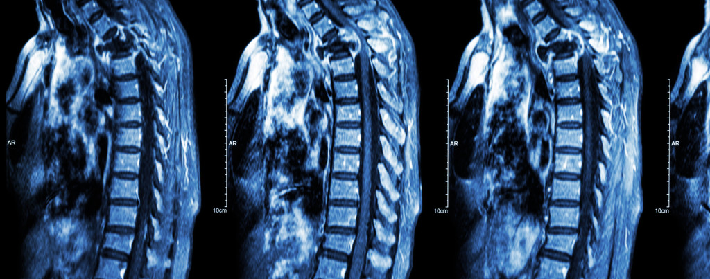 Miami Spinal Cord Injury Lawyer - Miami Personal Injury Lawyers