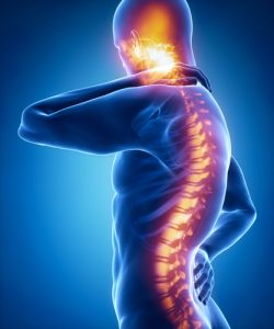 What Are the Lifetime Costs of a Spinal Cord Injury - Miami Personal Injury Lawyer
