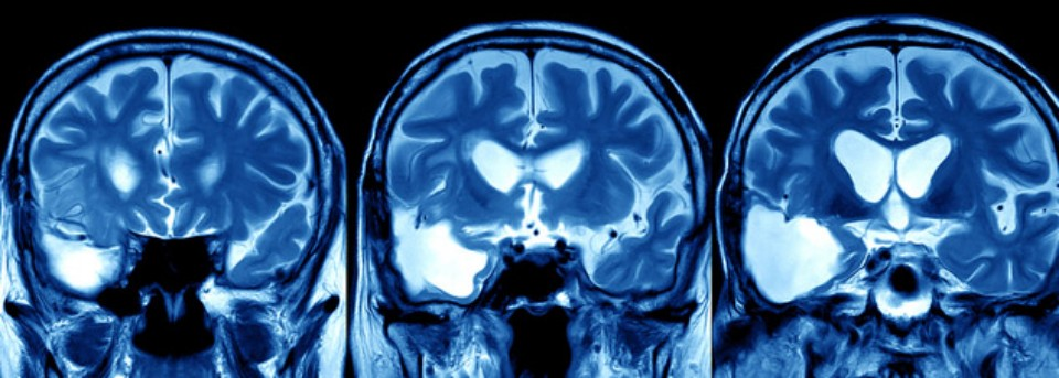 Traumatic Brain Injuries - Miami Personal Injury Attorney